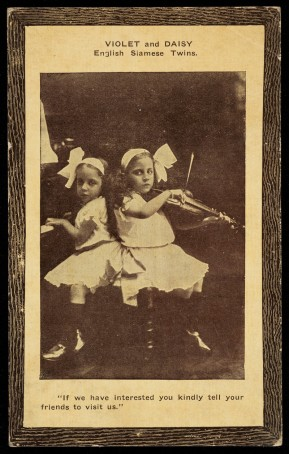 Violet and Daisy : English Siamese twins. Postcard, ca. 1914.