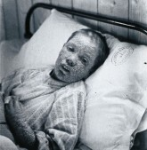 Child suffering from Smallpox in 1896