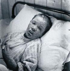Child suffering from Smallpox in 1896